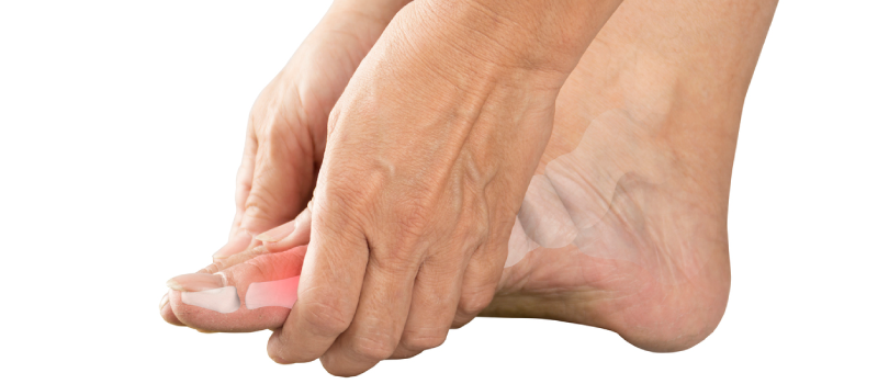 Achilles Tendonitis and Achilles Bursitis