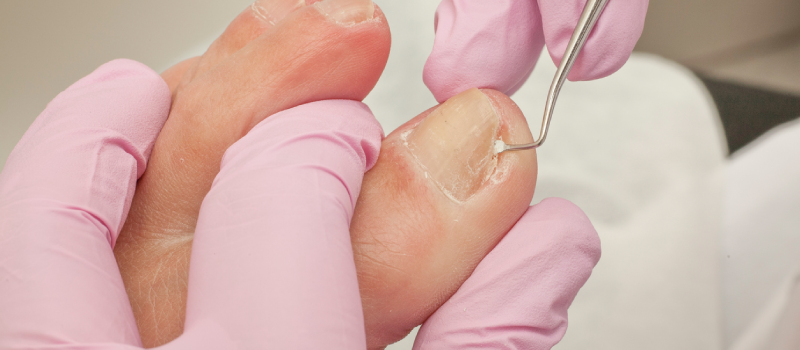 Ingrown Toenail Doctor Long Beach