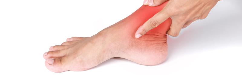 Neuroma Treatment Long Beach