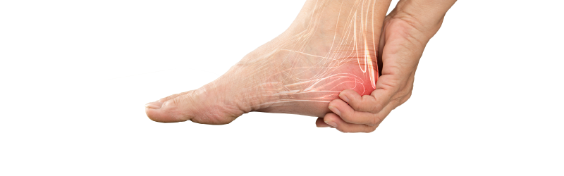 Long Beach Heel Pain