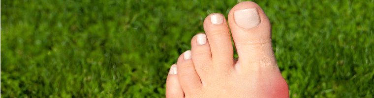 Bunion Doctor Long Beach