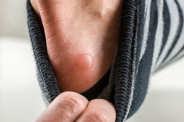 What To Do About Painful Blisters On Your Feet?