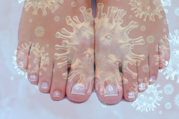 COVID-19 Toes Are Real And Here's How You Can Identify Them